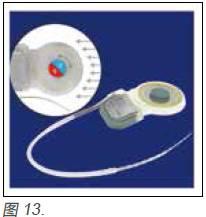 专题分享3人工耳蜗的技术参数及进展